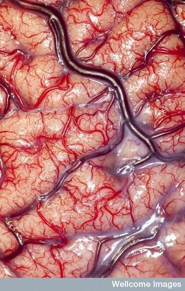 សរសៃឈាម-เส้นเลือด ภาษาเขมรวันละคำ រៀនភាសាថៃ